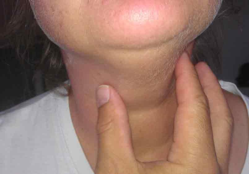 Hashimoto-Thyreoiditis - Symptome, Diagnose und Behandlung der Autoimmunerkrankung