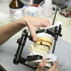 Warum ein Preisvergleich bei Zahnersatz lohnt